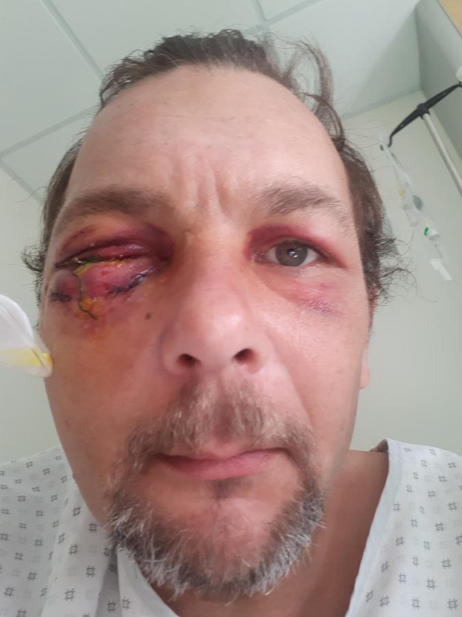 Jim, blessé à Bordeaux a perdu un oeil. L'autre a perdu en acuité. - D.R.