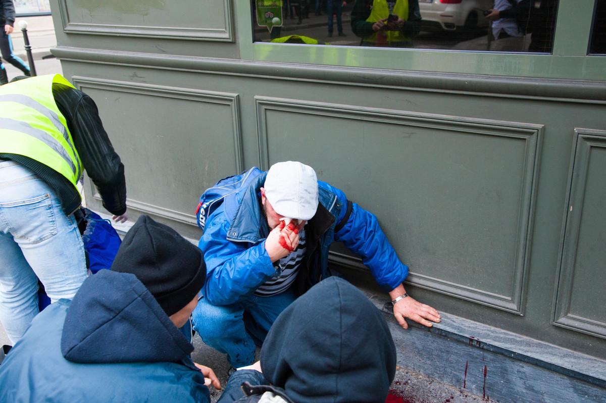 L'une des personnes blessées par les explosions près de la Madeleine. - © Reflets