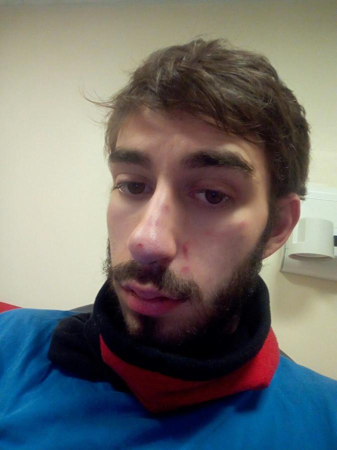 Steven, blessé le 8 décembre - D.R.