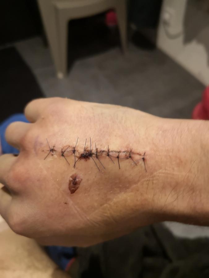 Steven a été blessé à la main - D.R.